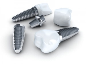 Three Dental implant