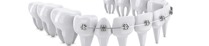 子供の歯列矯正と比べると、期間が長くなることが一般的