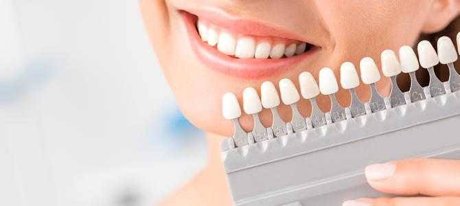 セラミックで理想の歯に!セラミックにも色々種類があるって知ってた?