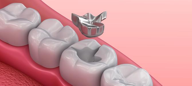 歯の詰め物が取れたときに取るべき行動は?